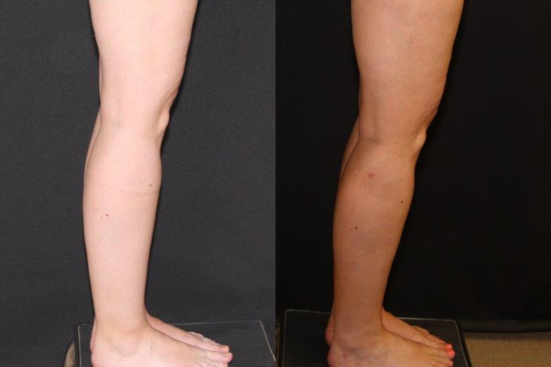 36 y 0 before and 6 months after ankle calve liposide